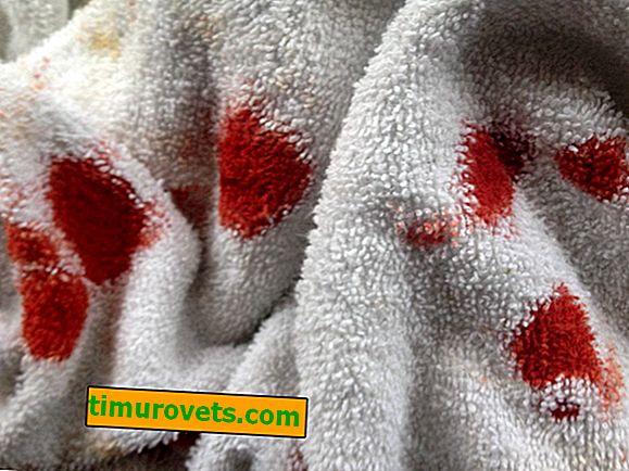 Kako odstraniti krvne madeže z brisače