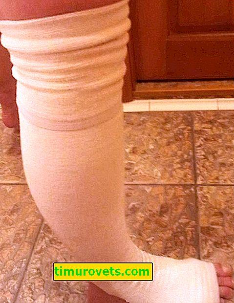 Компресивни чорапи за притискане - какво да направите
