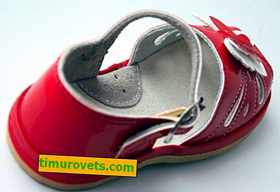 Поддръжка на арки в обувките - какво е това?