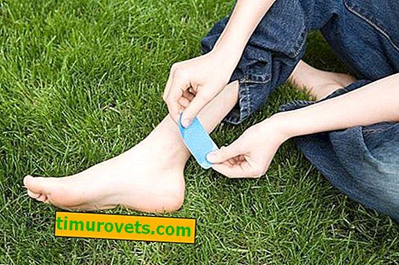 Los zapatos rozan el talón qué hacer