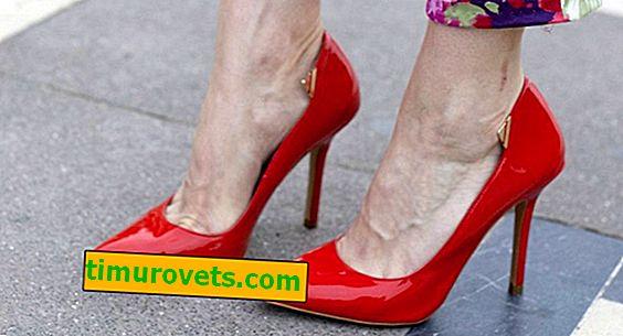 ТОП 7 обувки, които провокират разширени вени